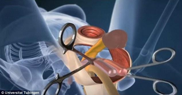 欧洲露鸡巴男子_欧洲泌尿协会发布视频揭秘男性变性手术全过程