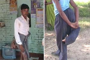"""印男子多长两条腿被称""""魔鬼""""遭歧视"""