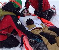 一游客在滑雪场滑雪摔骨折 滑雪场赔偿六万元