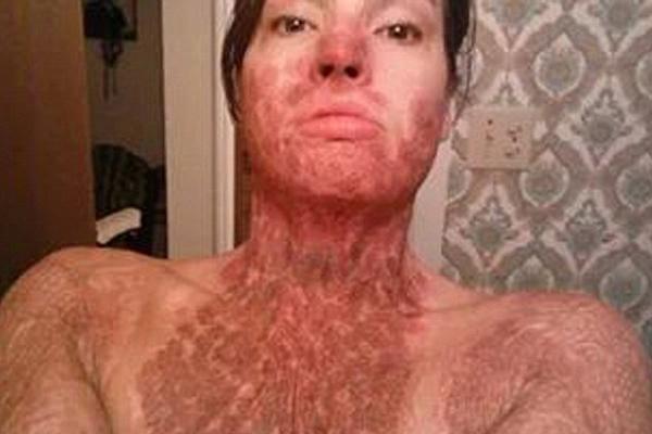 美女子被前男友烧伤 浴火重生后怀孕喜迎圣诞