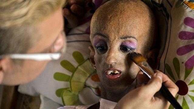 哥伦比亚15岁早衰少女庆生 身体已90岁(图)