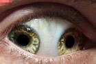最奇葩的眼睛变异现象
