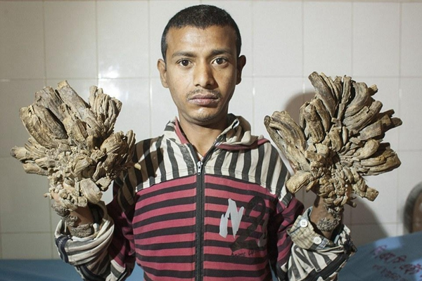 孟加拉国男子患罕见病 手脚增生如树根