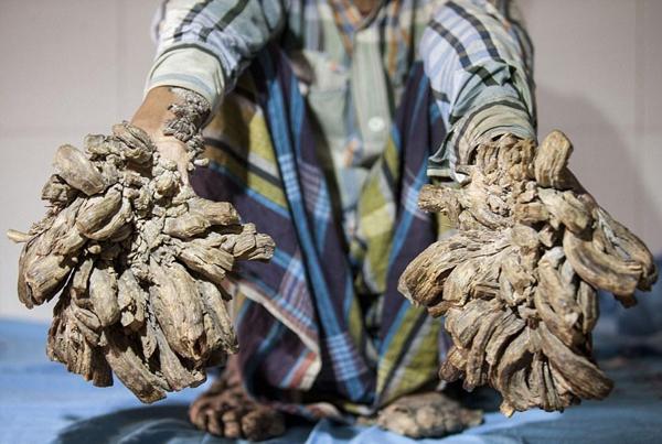 孟加拉国小伙身患怪病 竟长成了一棵树!