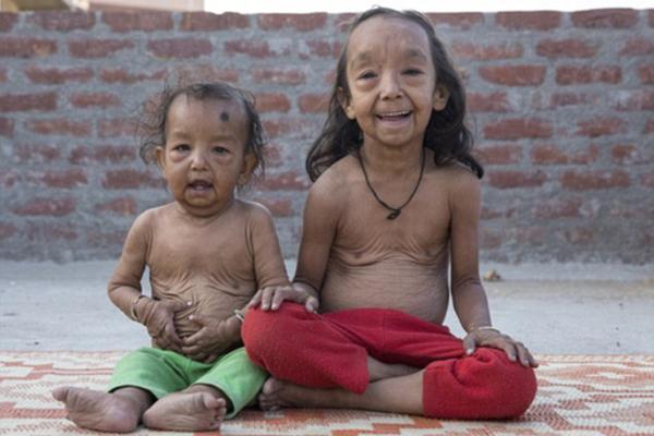 印度兄妹疑患儿童早衰症 孩童年龄老人颜