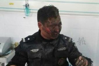 警察用身体压住爆炸物面容被毁