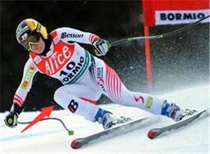 小器具规避滑雪膝伤风险