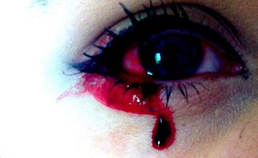 没流血_英国少女患怪病:眼耳鼻舌每日流血(图)_健康_环球网