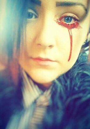 17岁少女患怪病:眼耳鼻舌每日流血