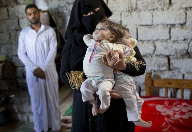 埃及10个月大连体女婴无法分割 父母焦急求救(图)
