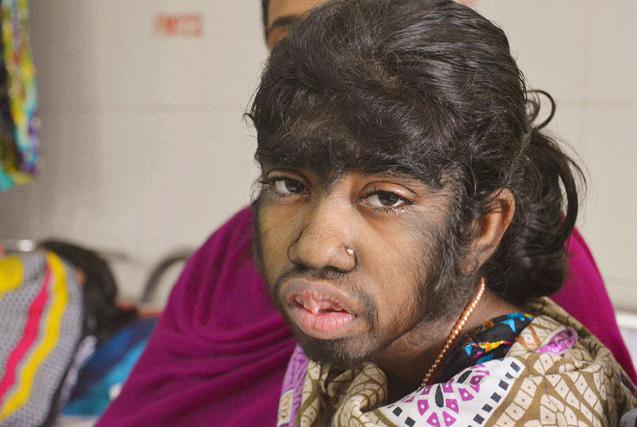 """孟加拉女孩全身毛发疯长似""""狼孩"""""""