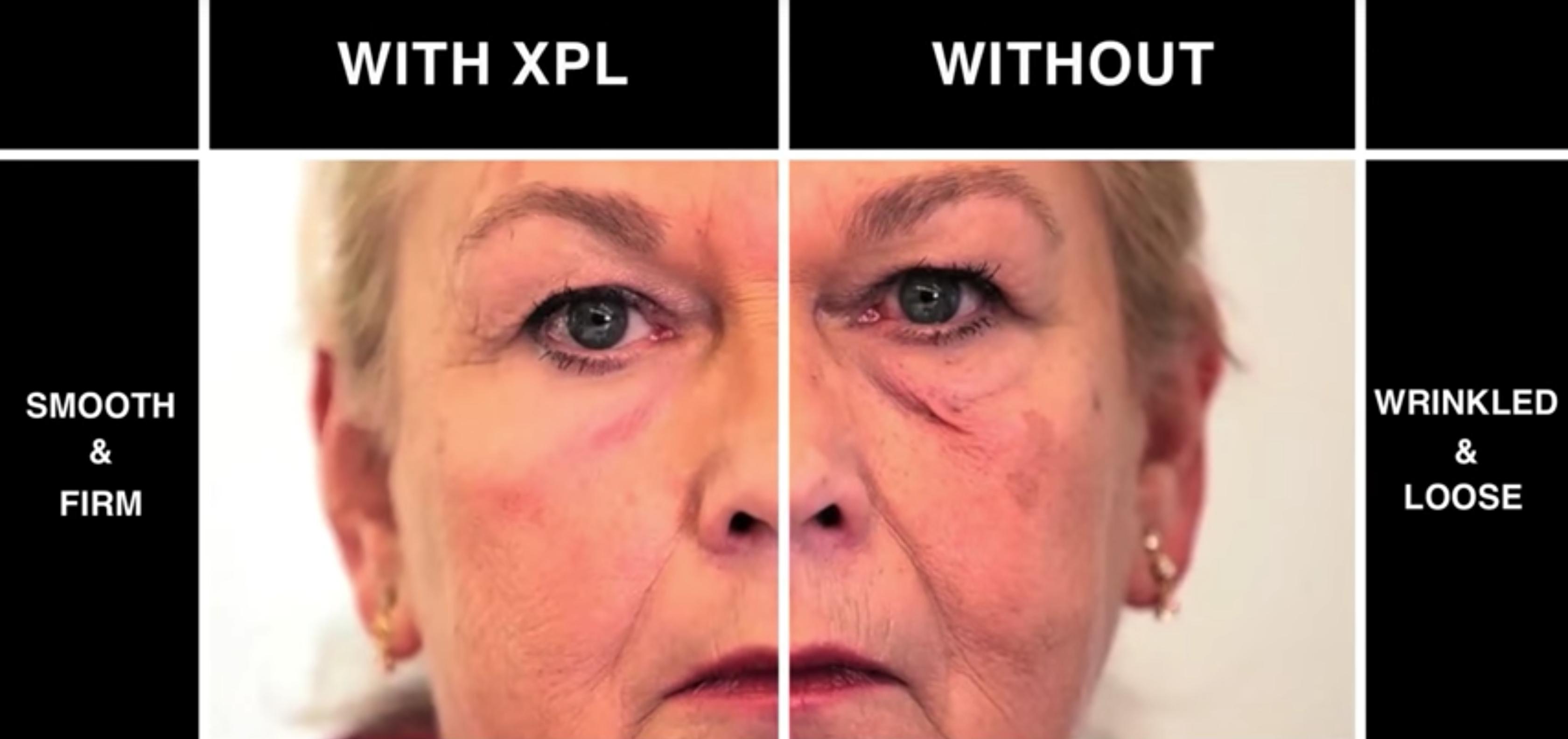 美国研发新型仿生皮肤 可抚平伤口