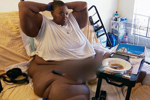 美重度肥胖患者术后不悔改继续吃薯片炸鸡
