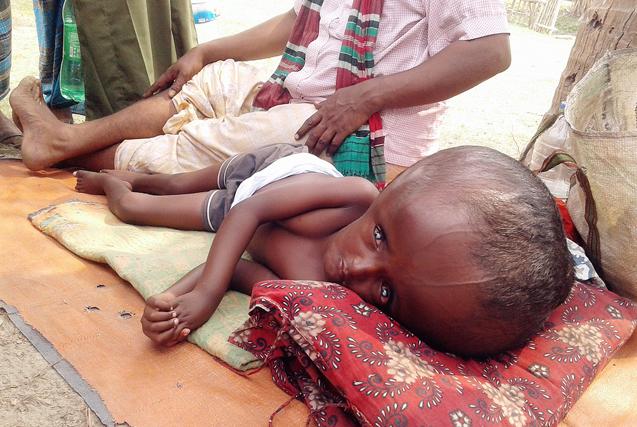 图片一周精选 孟加拉大头症男童家人乞讨求医