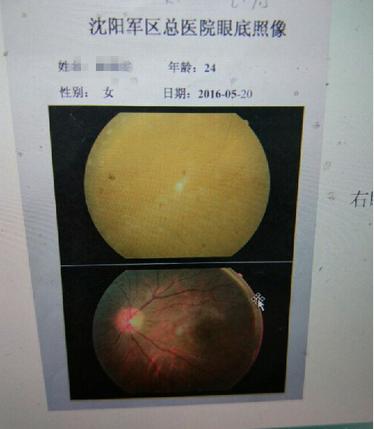23岁女孩民房注射玻尿酸 10秒后双眼失明