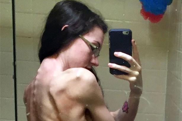 美国女大学生患厌食症 瘦成排骨被误诊为癌症