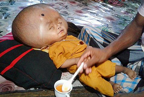 孟加拉2岁男孩患脑水肿 头重18斤