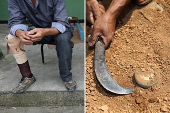 中越边境村民屡遭地雷炸残 用砍刀排雷