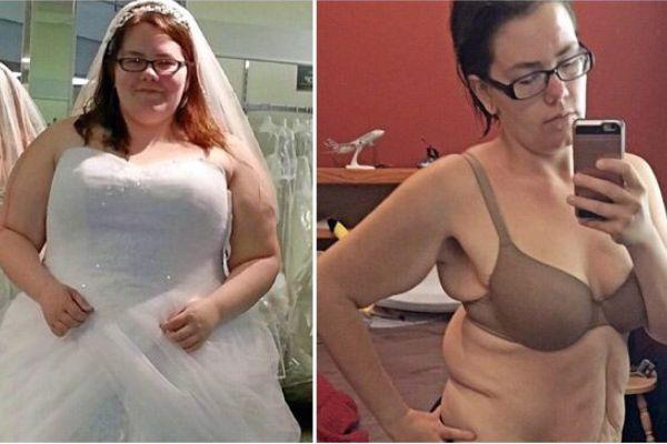 美国女生面对减肥后的烦恼 全身松弛皮肤重40斤