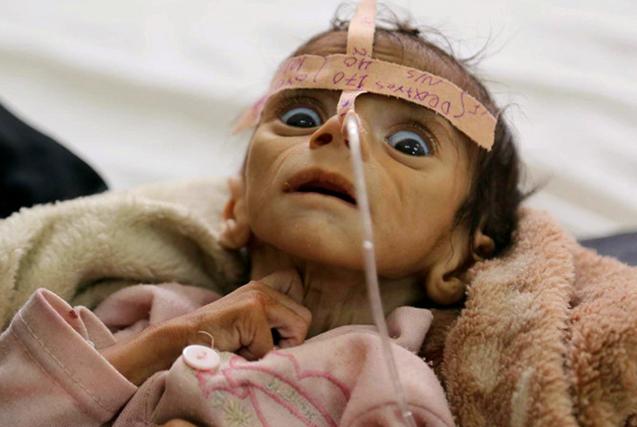 六一儿童节:聚焦全球苦难中的儿童