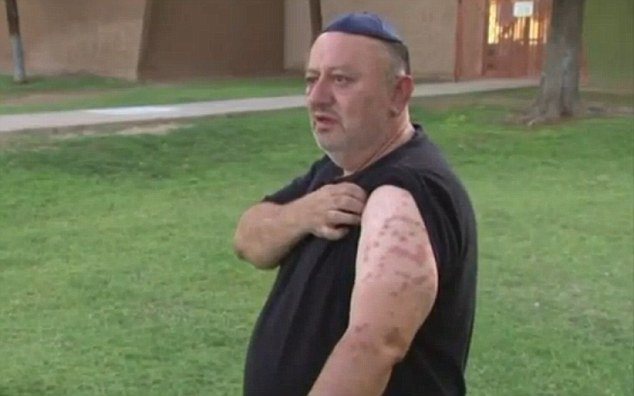 美中年男子遭蜜蜂围攻休克 因心脏起搏器获救