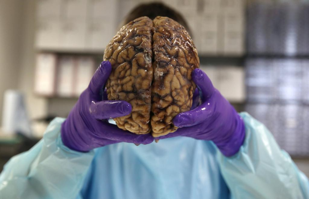 英国大学研究脑神经疾病 对人脑进行组织切片