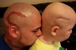 美父亲将儿子术后伤疤纹到自己头上激励儿子