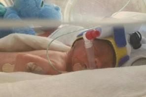 澳25周早产男婴仅800克 靠塑料袋保温