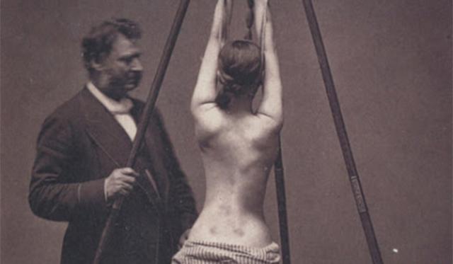 揭秘国外100年前的医疗设备 造型恐怖如同拷问工具