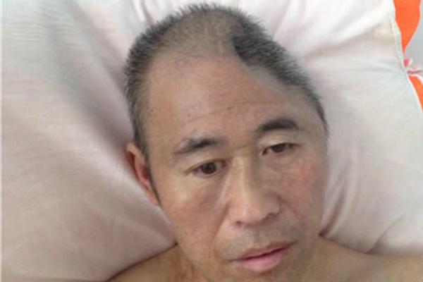 48岁男子受伤后小半个脑袋没了 小20岁妻子离他而去