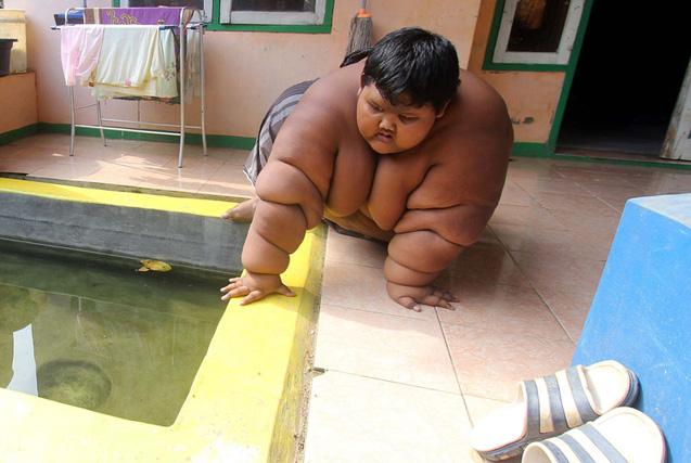 印尼现世界最胖男孩 10岁重达384斤