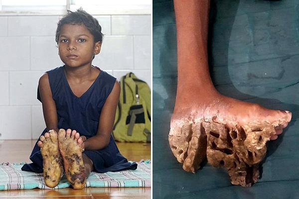 印三姐妹患罕见先天皮肤病 脚掌异常增厚长肿瘤