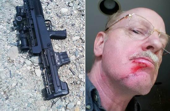 枪迷玩97式步枪炸膛下巴受伤