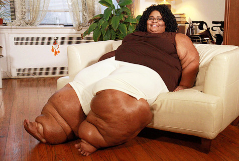 美国准新娘得怪病 大腿宽约1.3米