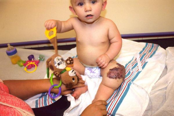 可怜!美宝宝患血管畸形膝盖肿大如足球