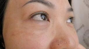 健康去色斑好方法 推荐中医按摩美容法