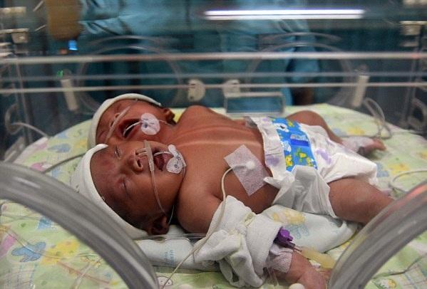 印尼女子诞下罕见寄生式连胎 共享一个身体