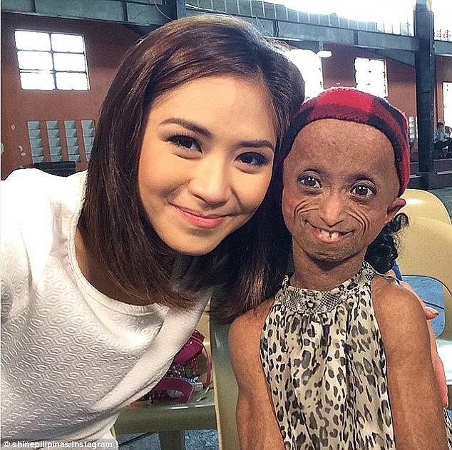 菲律宾19岁早衰症女孩离世 体貌似150岁老人