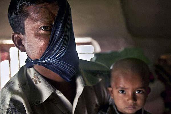 孟加拉国男子遭老虎袭击只剩半边脸 为嫁女欲整容