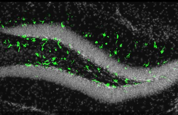 寨卡病毒可能也伤害成人脑细胞