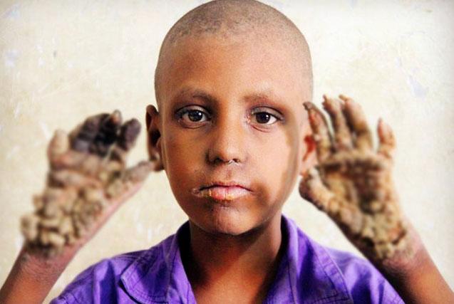 """孟加拉男童患""""树人病"""" 手脚生树枝"""