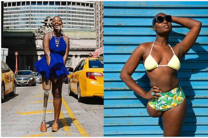 女孩患癌后无奈截肢 10年后变身时尚博主