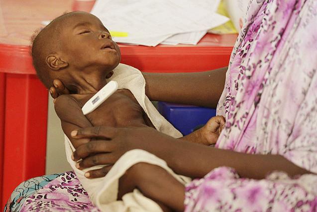 尼日利亚儿童在难民营挨饿 奄奄一息