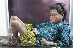 尼泊尔少女患怪病 全身长满鱼鳞癣