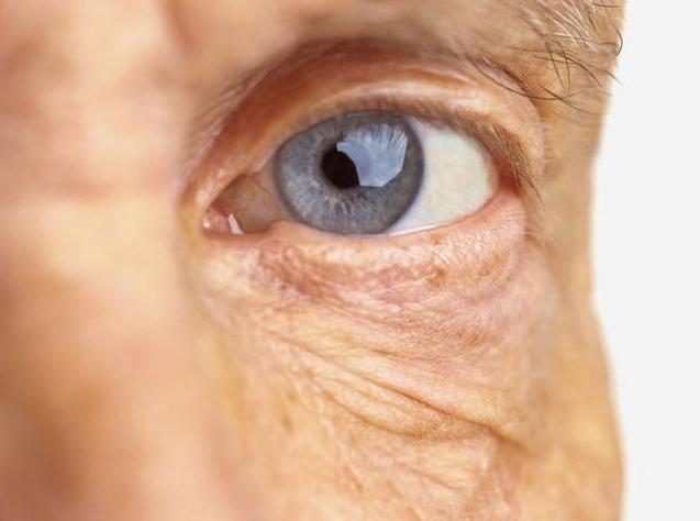 耄耋老人肺部感染为啥眼睛疼痛难忍?