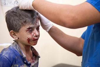 阿勒颇再遭空袭 儿童受伤场面令人揪心