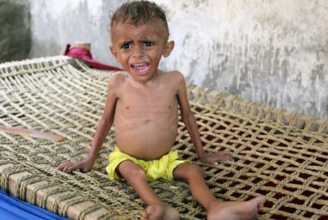 也门贫困村落儿童现状:严重营养不良