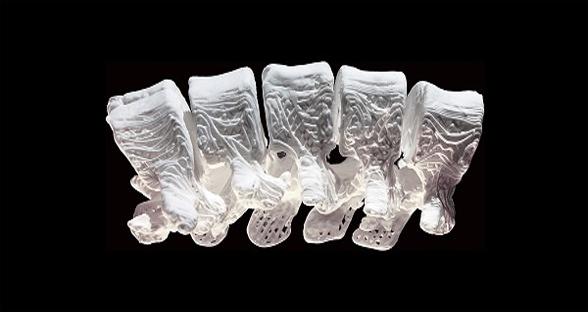 """""""超弹性骨头""""问世 将成为重建手术未来"""