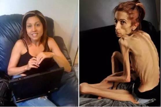 37岁女演员瘦得只剩18公斤,老公居然这样对待她…