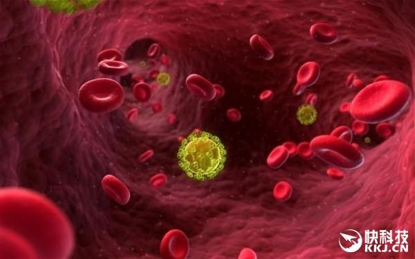 英国科学家密谋新方法:艾滋病携带者疑被治愈